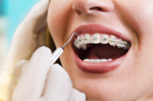 braces - orthodontic treatment